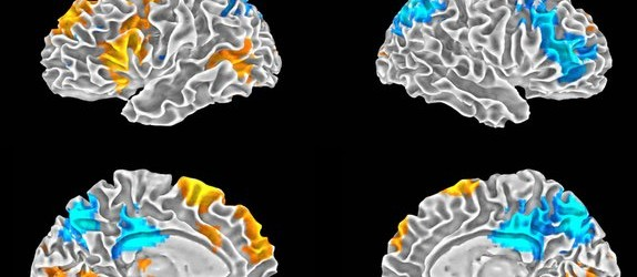 Mic Check! Brain Scans of Freestyle Rappers Reveal Creativity Regions
